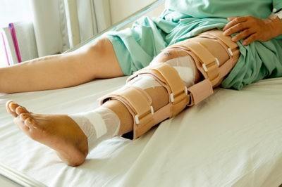 Изображение - Перелом ноги степень тяжести вреда здоровью perelom_nog_1_15154044-400x266