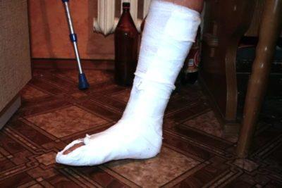 Изображение - Перелом ноги степень тяжести вреда здоровью perelom_nogi_1_15155057-400x267